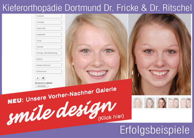 kieferorthop die dortmund dr fricke dr ritschel invisalign. Black Bedroom Furniture Sets. Home Design Ideas